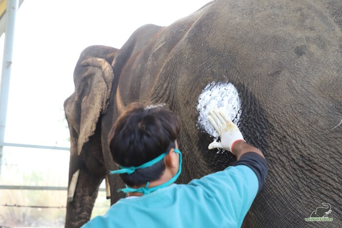 Jai's hip abscess being treated with antiseptic ointment.
